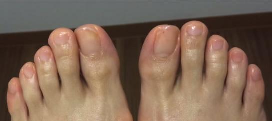 爪のケア After