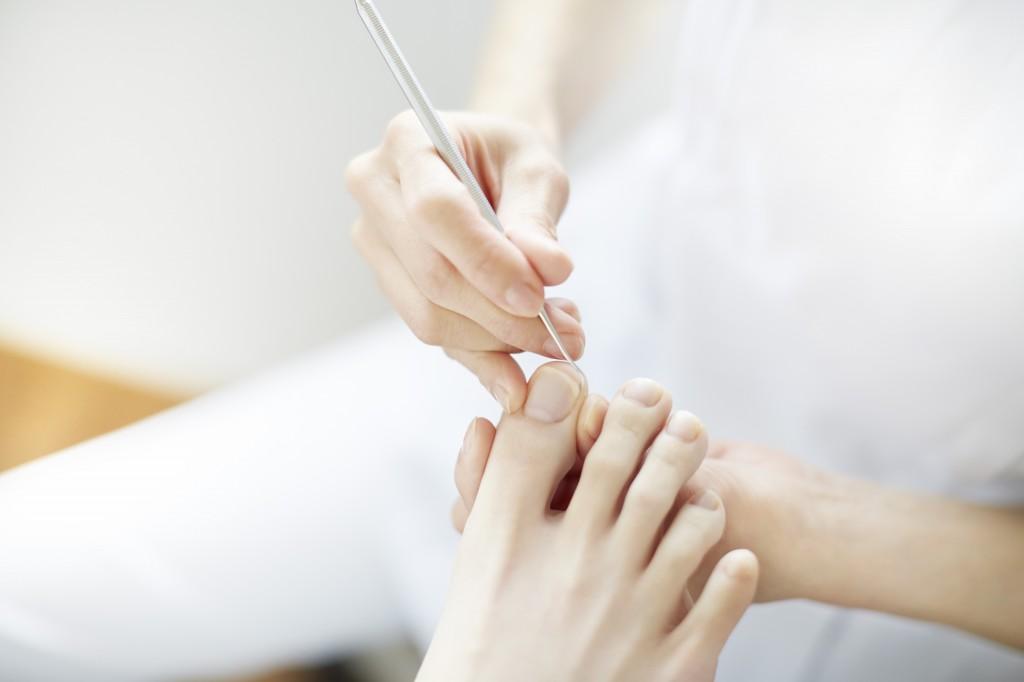 爪の中のゴミも痛みの原因?