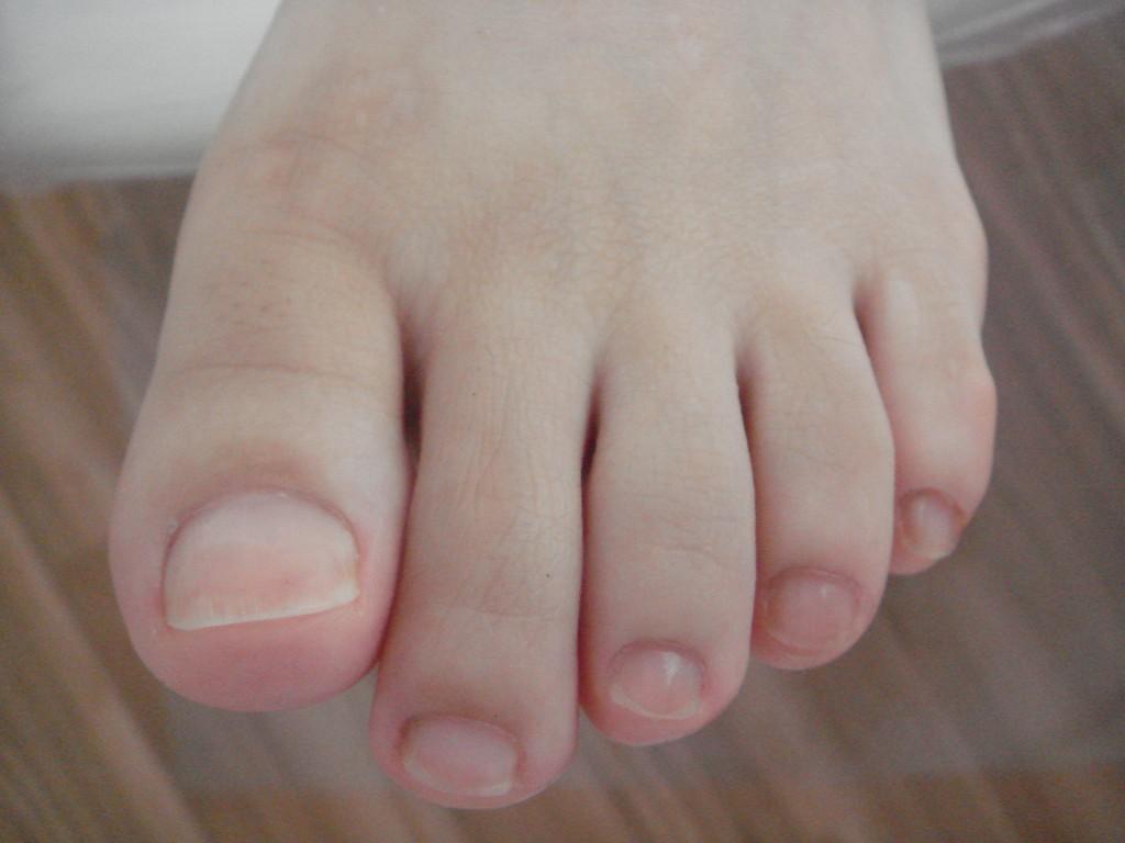 爪のケア(1)After