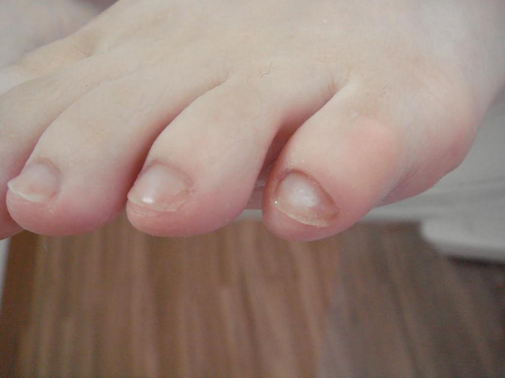 小指の甘皮 After